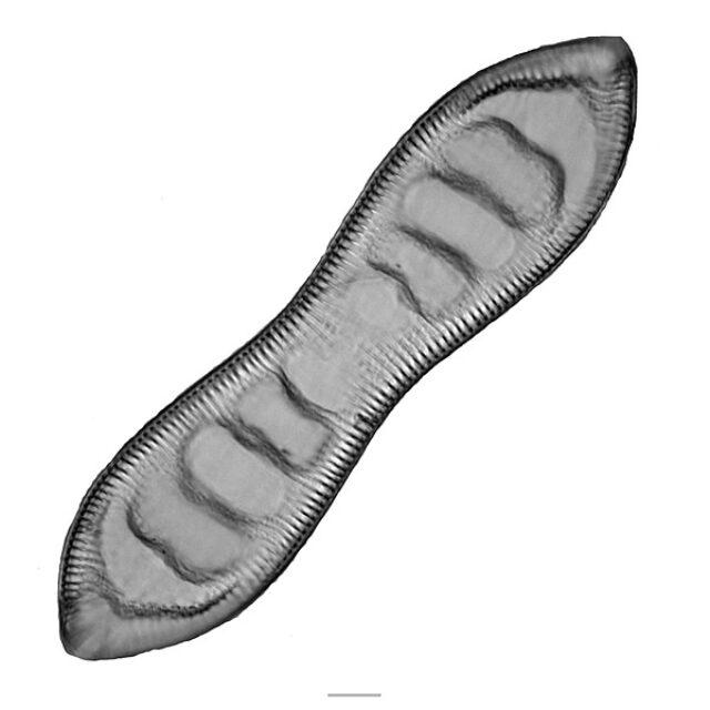 Cymatopleura Iconic