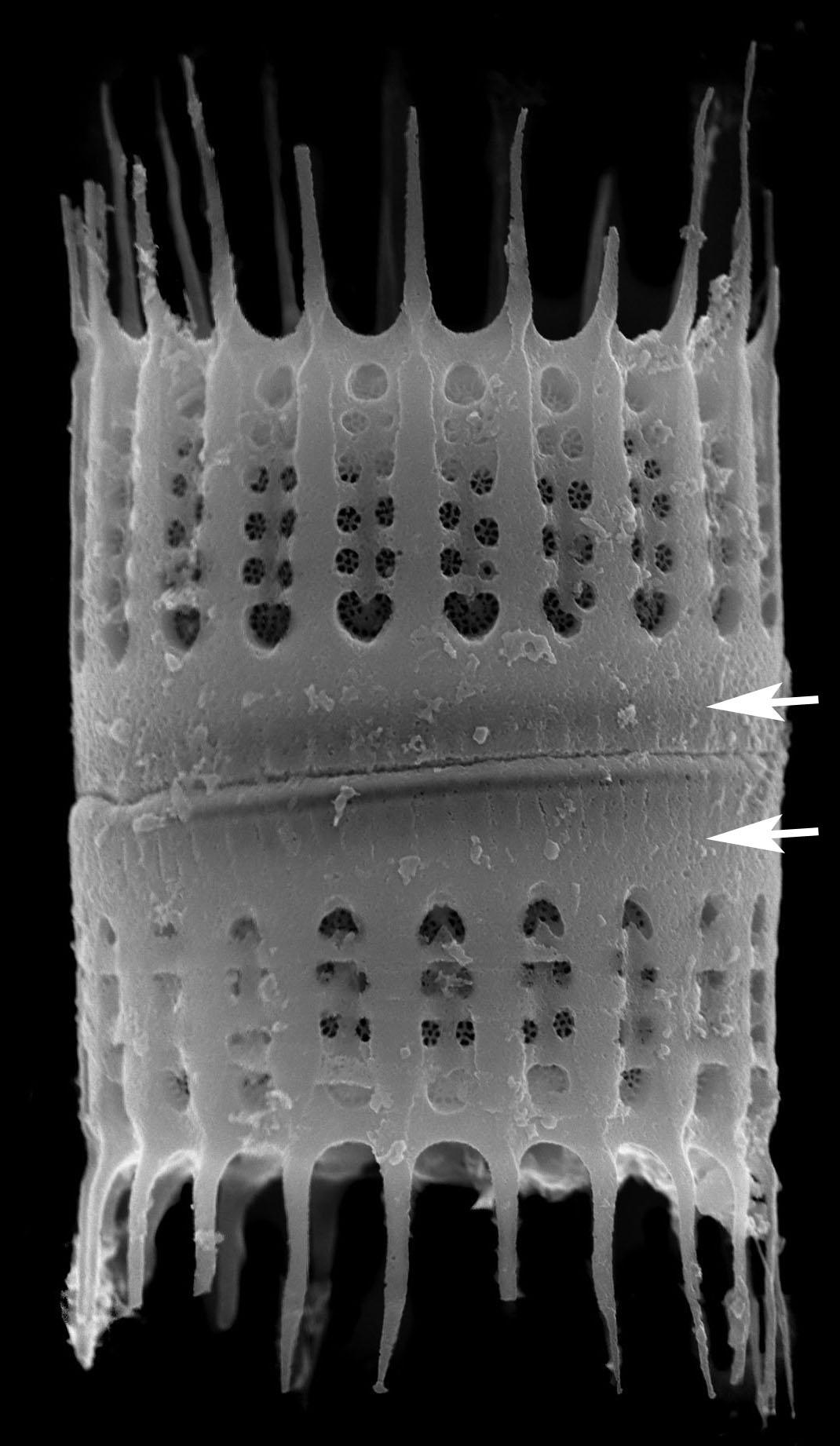A Humilis Collum