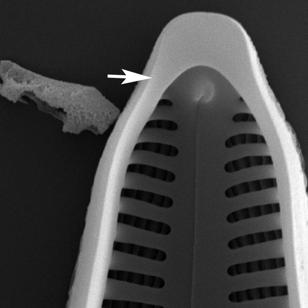 Gomphonema Pseudoseptum