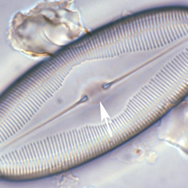 Caloneis Central Nodule
