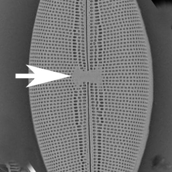 Mastogloia Lateral Sternum
