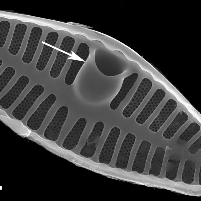 Placoneis abiskoensis LM5