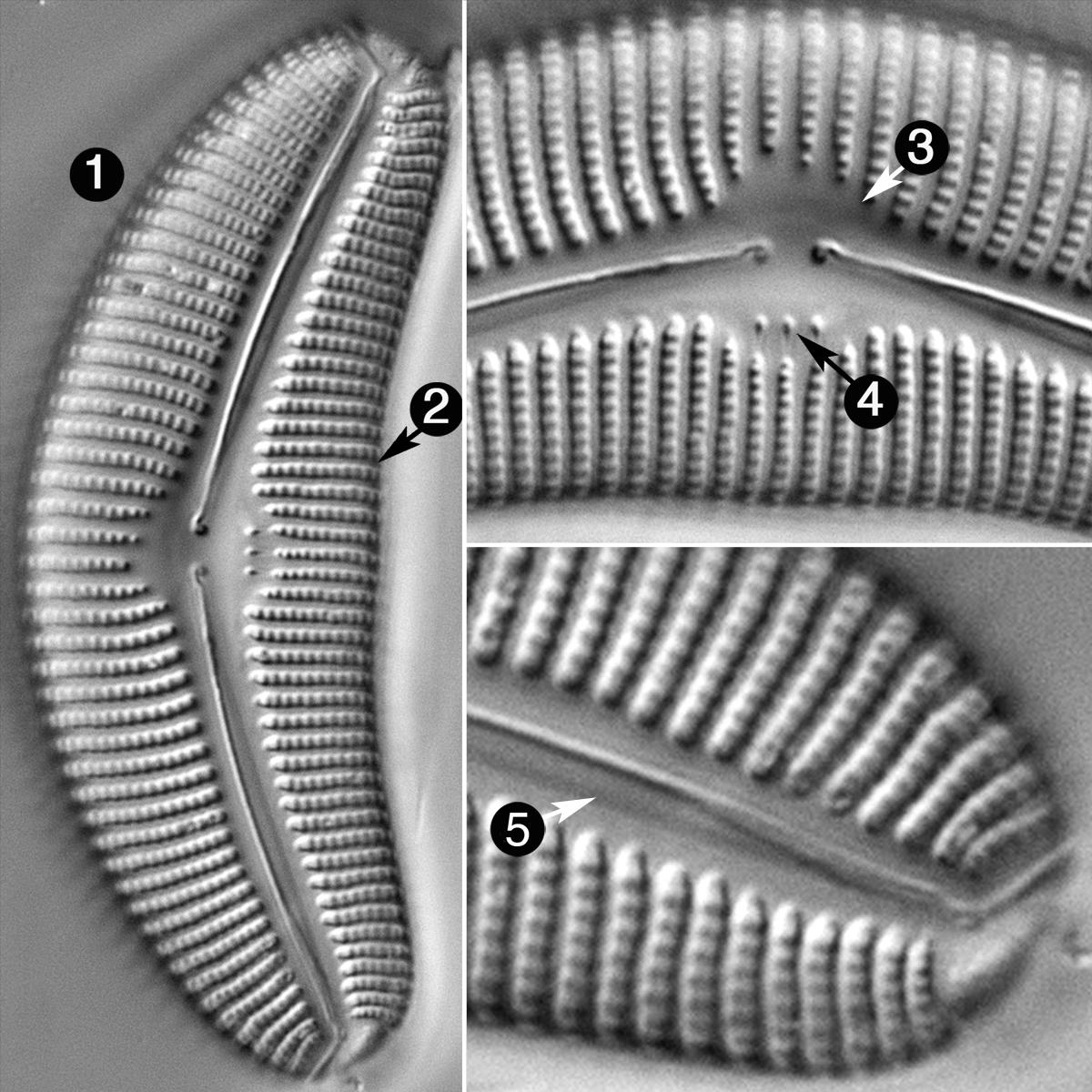 Cymbella Proxima F Gravida Guide