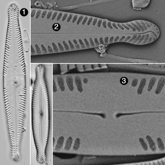 Pinnularia Brauniana2 Guide