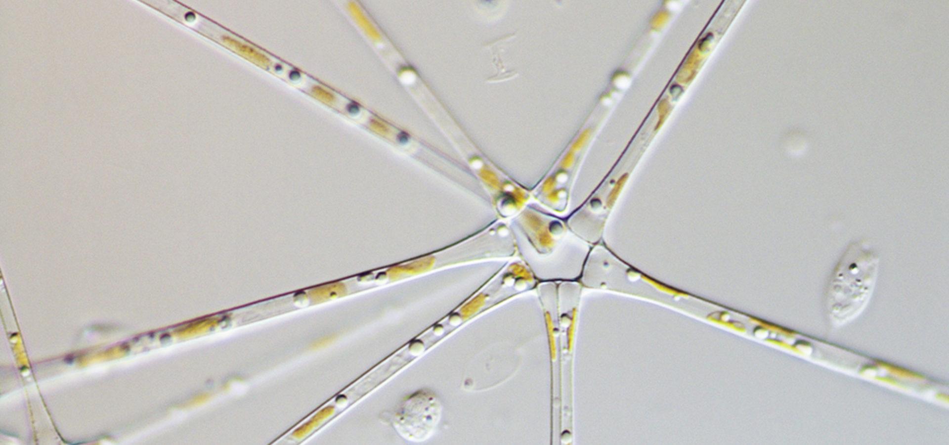 Asterionella Fomosa