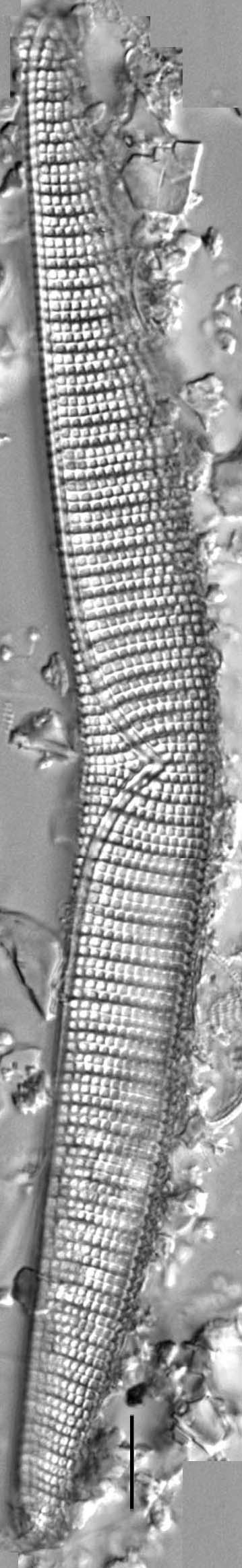 Epithemia turgida Iho41070 1Ed 1