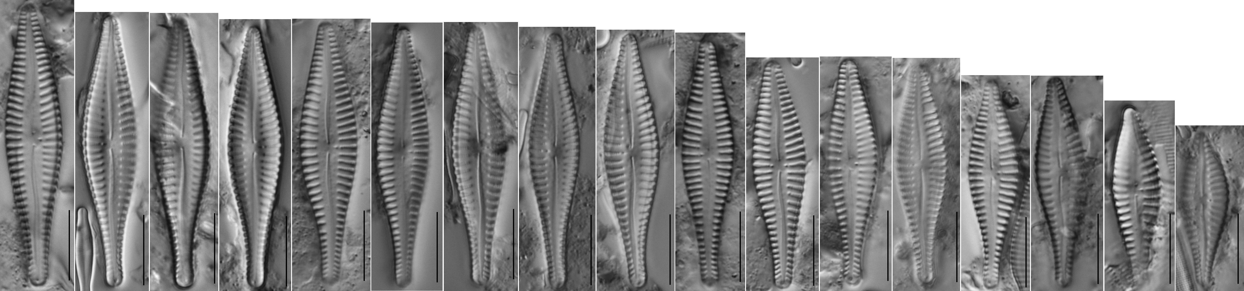 Gomphonema Gibba Plate  Fl