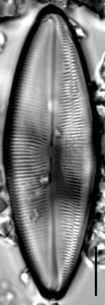 Anomoeoneis Costata internal valve