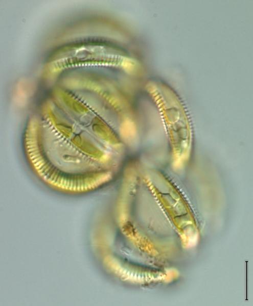 Live Colony Semiorbis eliasiae