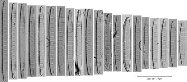 Tryblionella brunoi Size Series