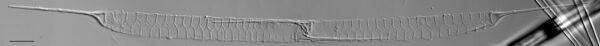 Urosolenia Eriensis Lm3