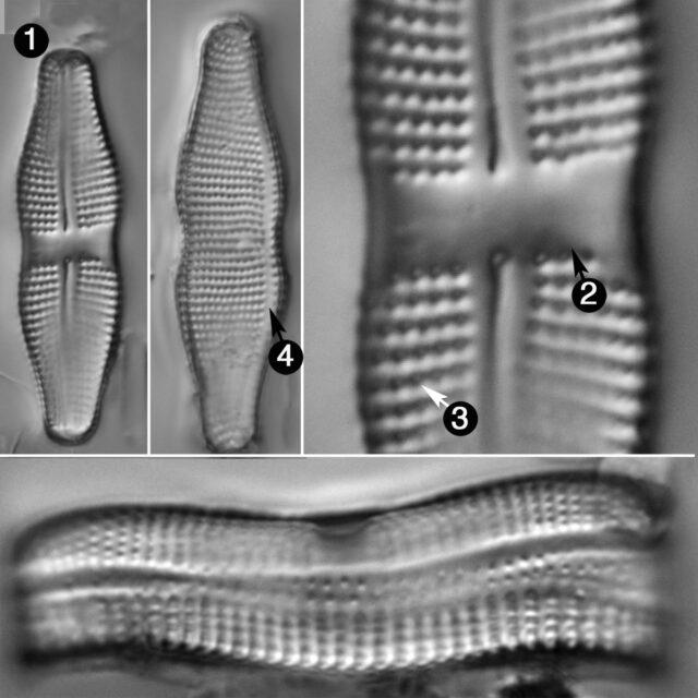 Achnanthes Coarctata Guide