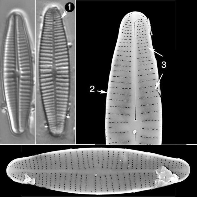 Achnanthidium Druarti Guide