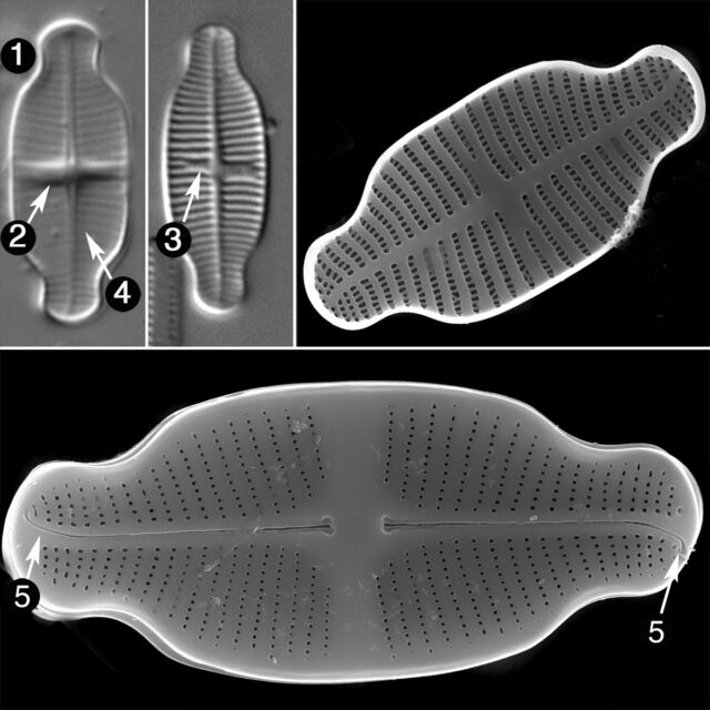Achnanthidium Exiguum Guide