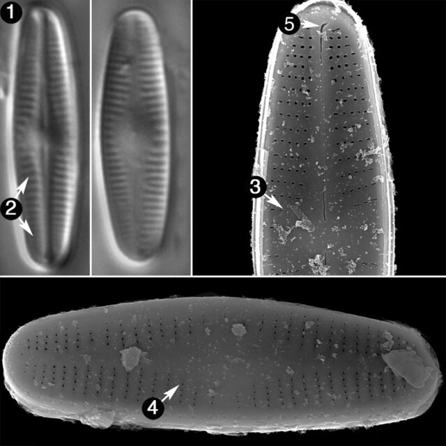 Achnanthidium Kranzii Guide
