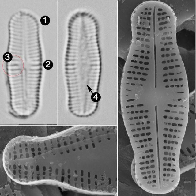 Achnanthidium Rosenstockii Guide