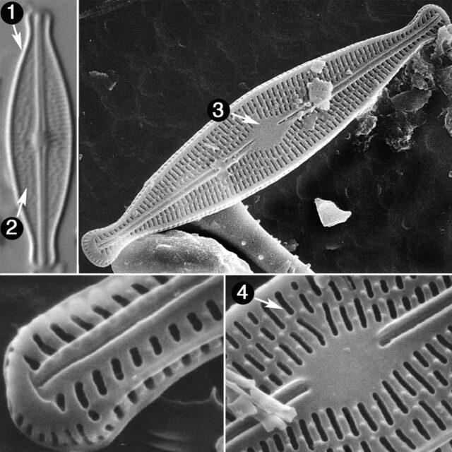 Brachysira Microcephala