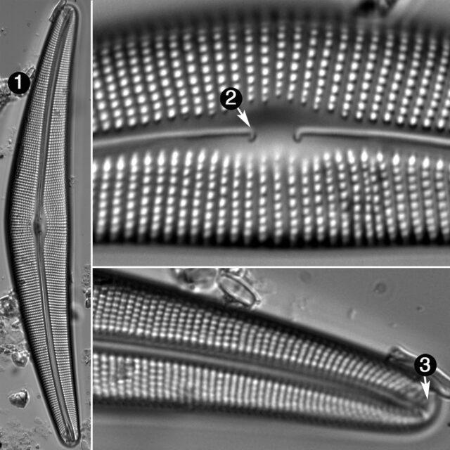 Cymbella Lanceolata Guide