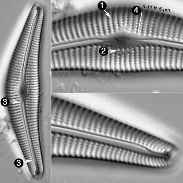 Cymbella Neocistula Guide