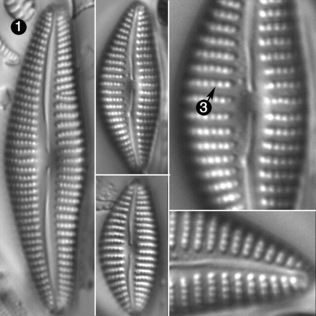 Cymbella Neoleptoceros Guide