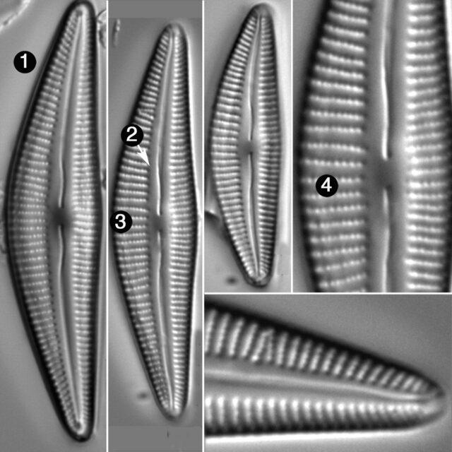 Cymbella Stigmaphora Guide