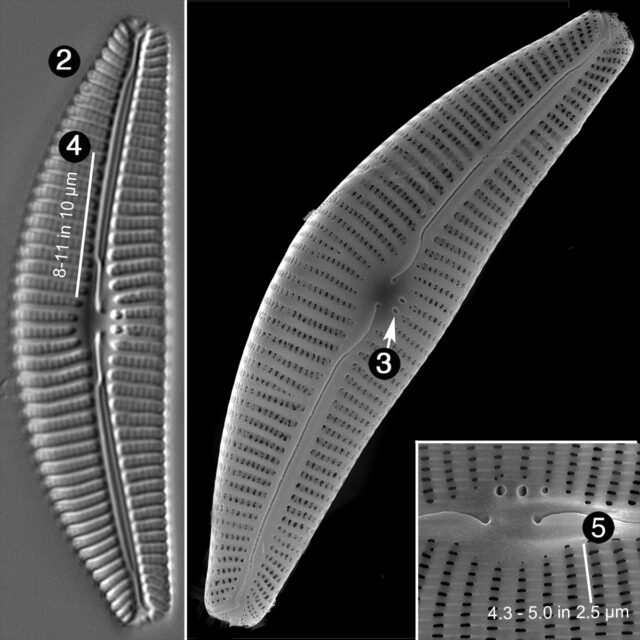 Cymbella Subturdigula Guide