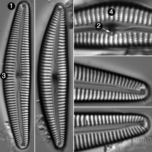 Cymbella Vulgata Guide