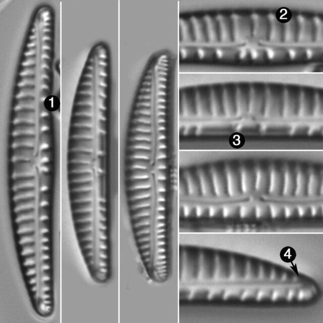 Encyonema Paucistriatum Guide