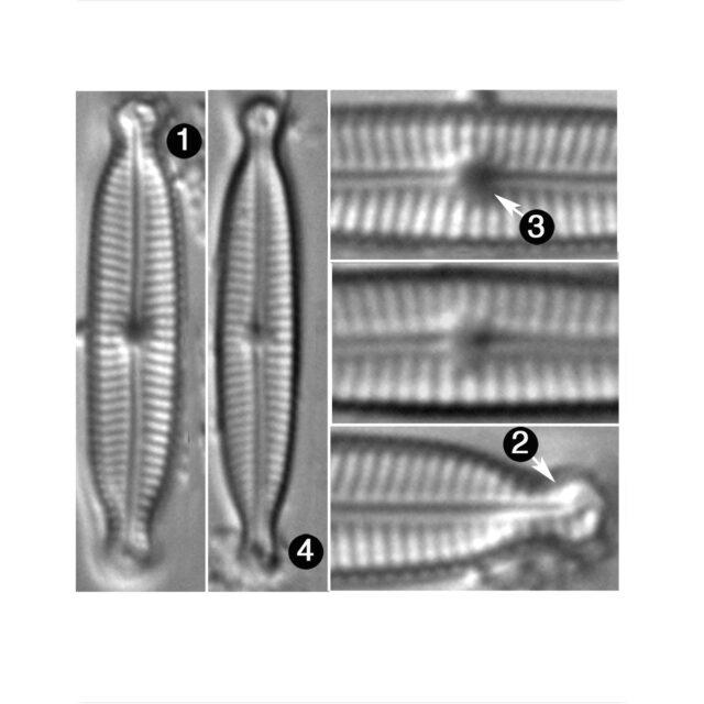 Encyonopsis Hustedti Guide