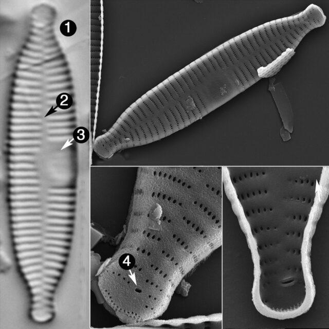 Fragilaria Recapitellata Guide