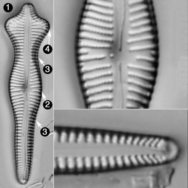 Gomphonema Acuminatum Guide