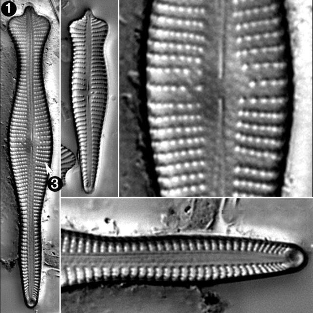 Gomphonema Coronatum Guide
