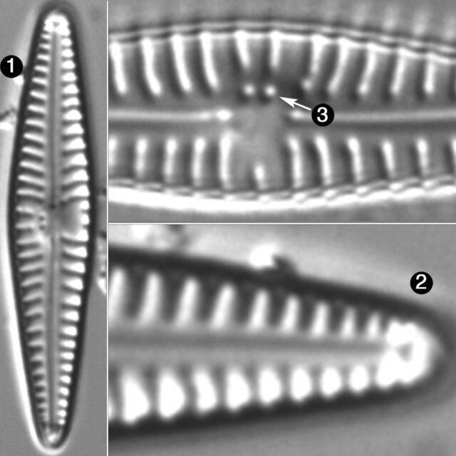 Gomphonema Duplipunctatum Guide