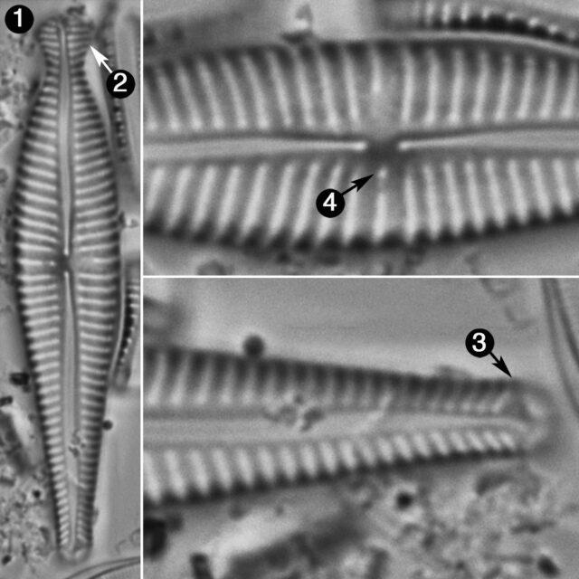 Gomphonema Pseudosphaerophorum Guide