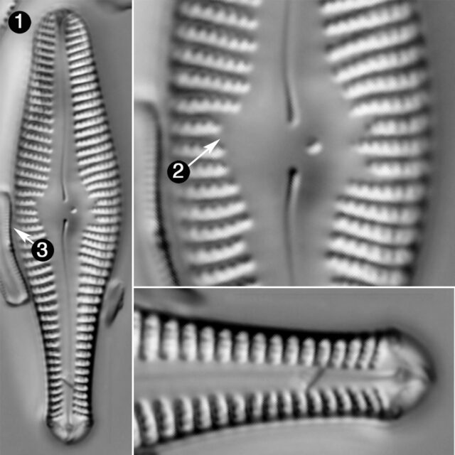 Gomphonema Ventricosum Guide