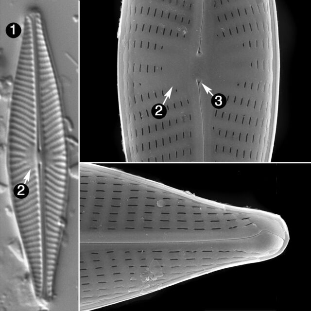 Navicula Cryptocephala Guide