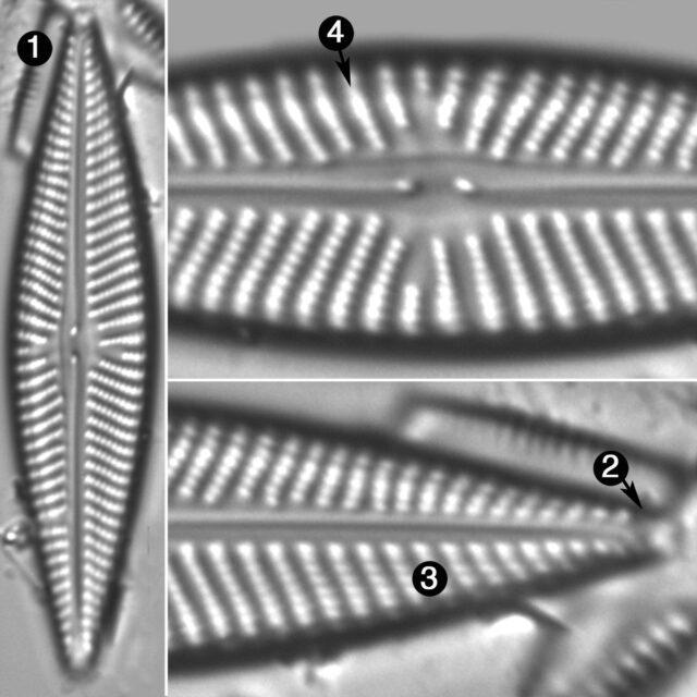 Navicula Pseudolanceolata Guide