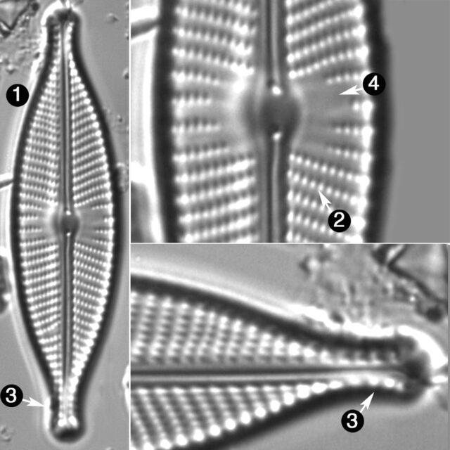 Navicula Rhynchotella Guide