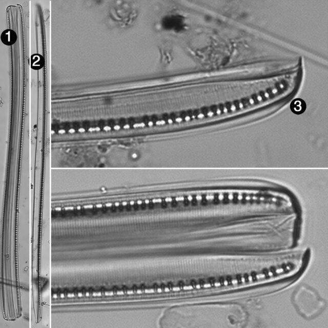 Nitzschia Sigmoidea Guide