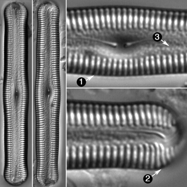 Pinnularia Acrosphaeria Guide