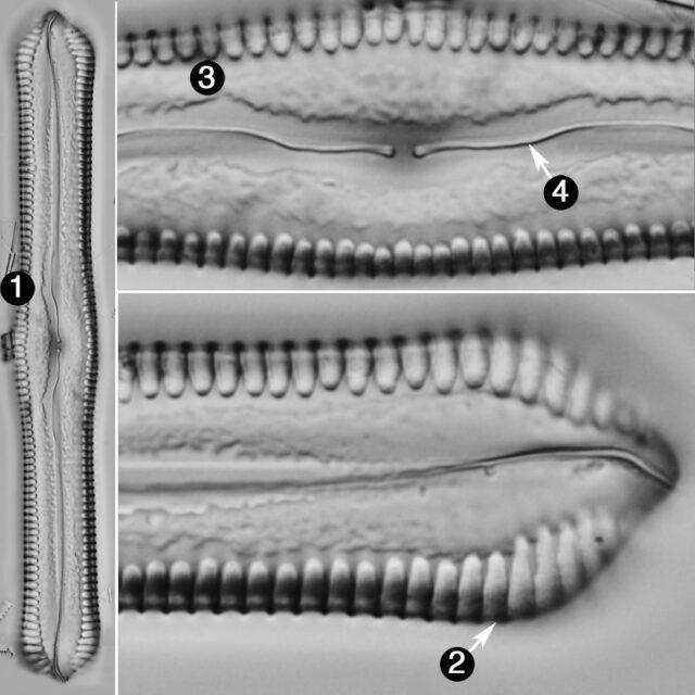 Pinnularia Cuneicephala Guide
