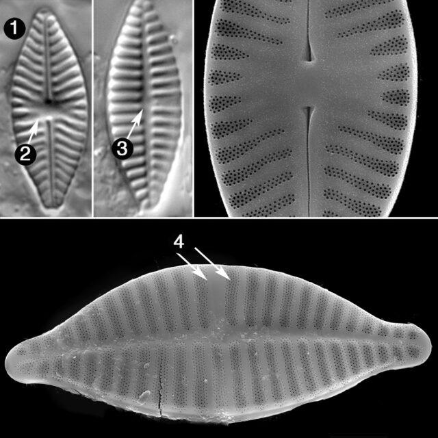Planothidium Delicatulum Guide