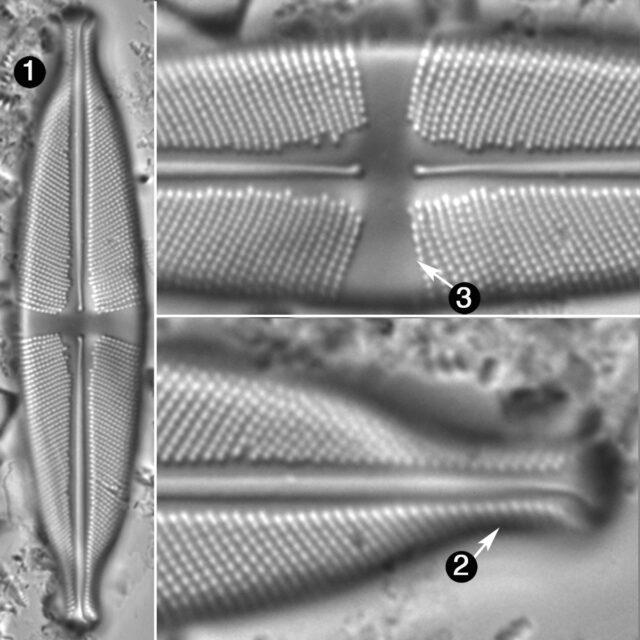 Stauroneis Amphicephala Guide