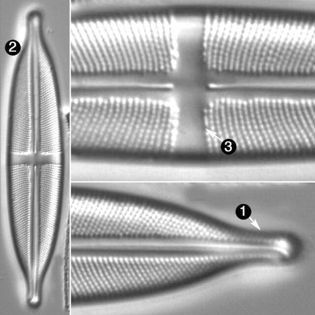 Stauroneis Anceps Guide