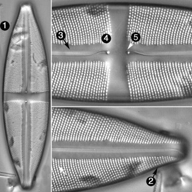 Stauroneis Circumborealis Guide