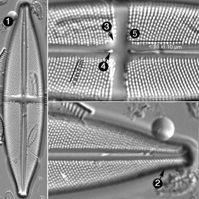 Stauroneis Flumiopsis Guide