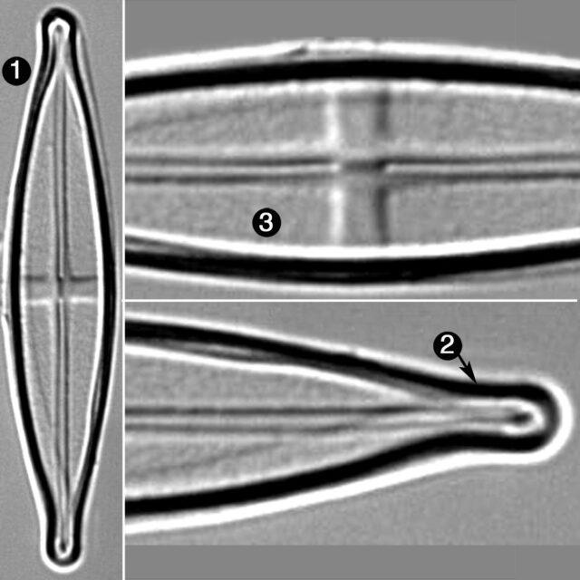 Stauroneis Neohylina Guide
