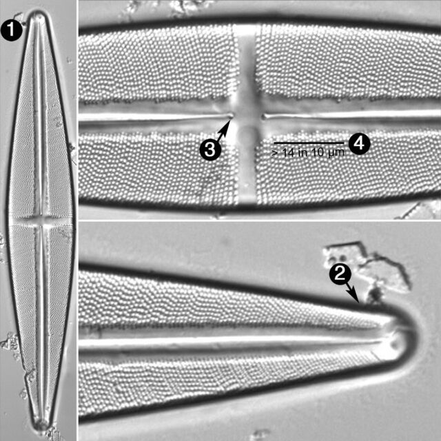 Stauroneis Phoenicenteron Guide