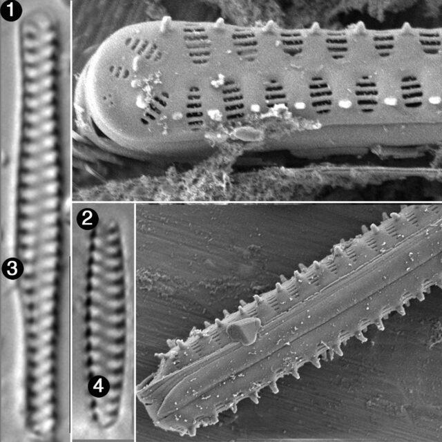 Staurosirella Berolinensis2 Guide