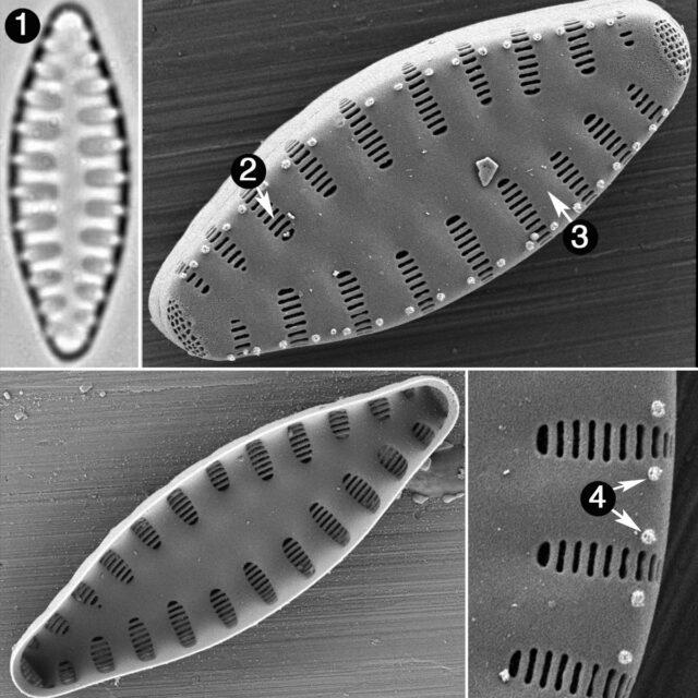 Staurosirella Leptostauron Dubia Guide